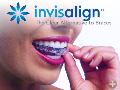 InvisAlign